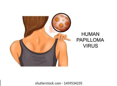 papilloma vírus emberképeken hpv impfung tkk