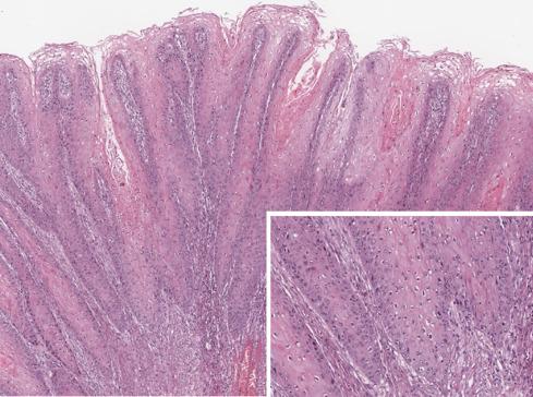 a condyloma tüneteit jelzi a fascioliasis tünetei és kezelése