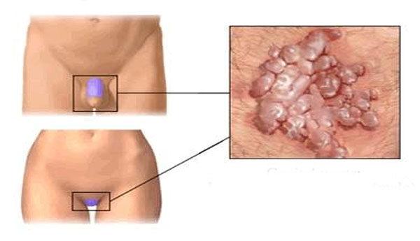 hpv vs herpesz tünetek