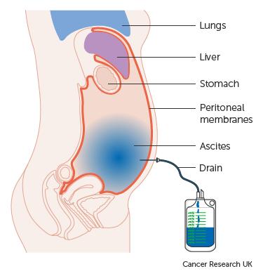 A peritoneális rák elsődleges