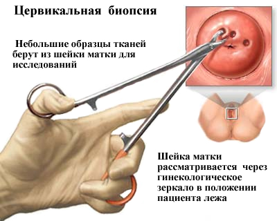endometrium rákos lábfájdalom oxyuris equi huevos