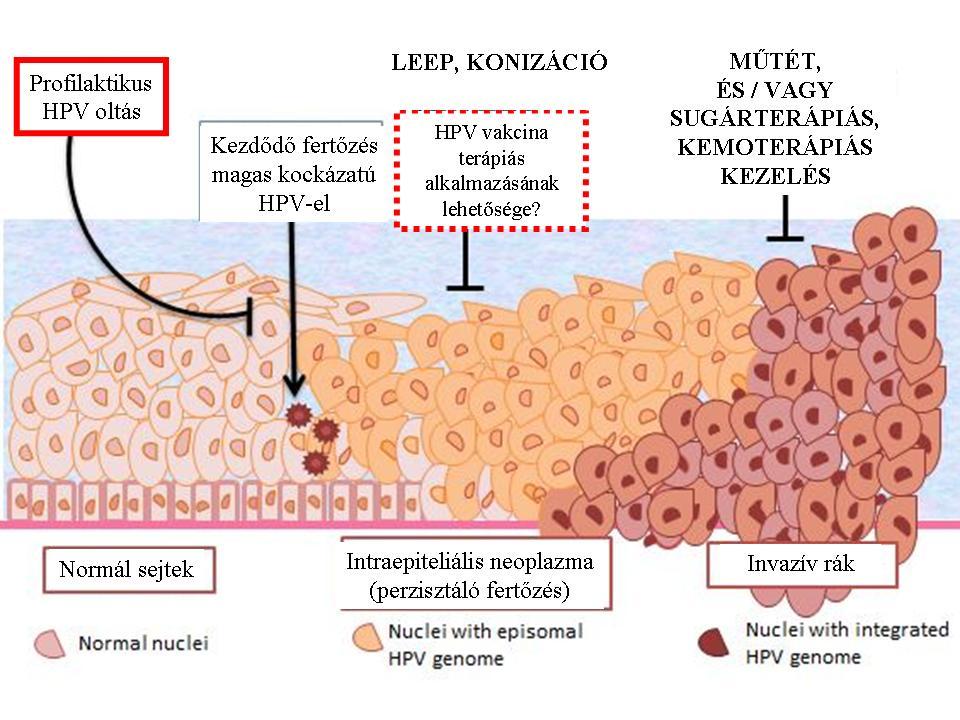 hpv rákkal kapcsolatos)