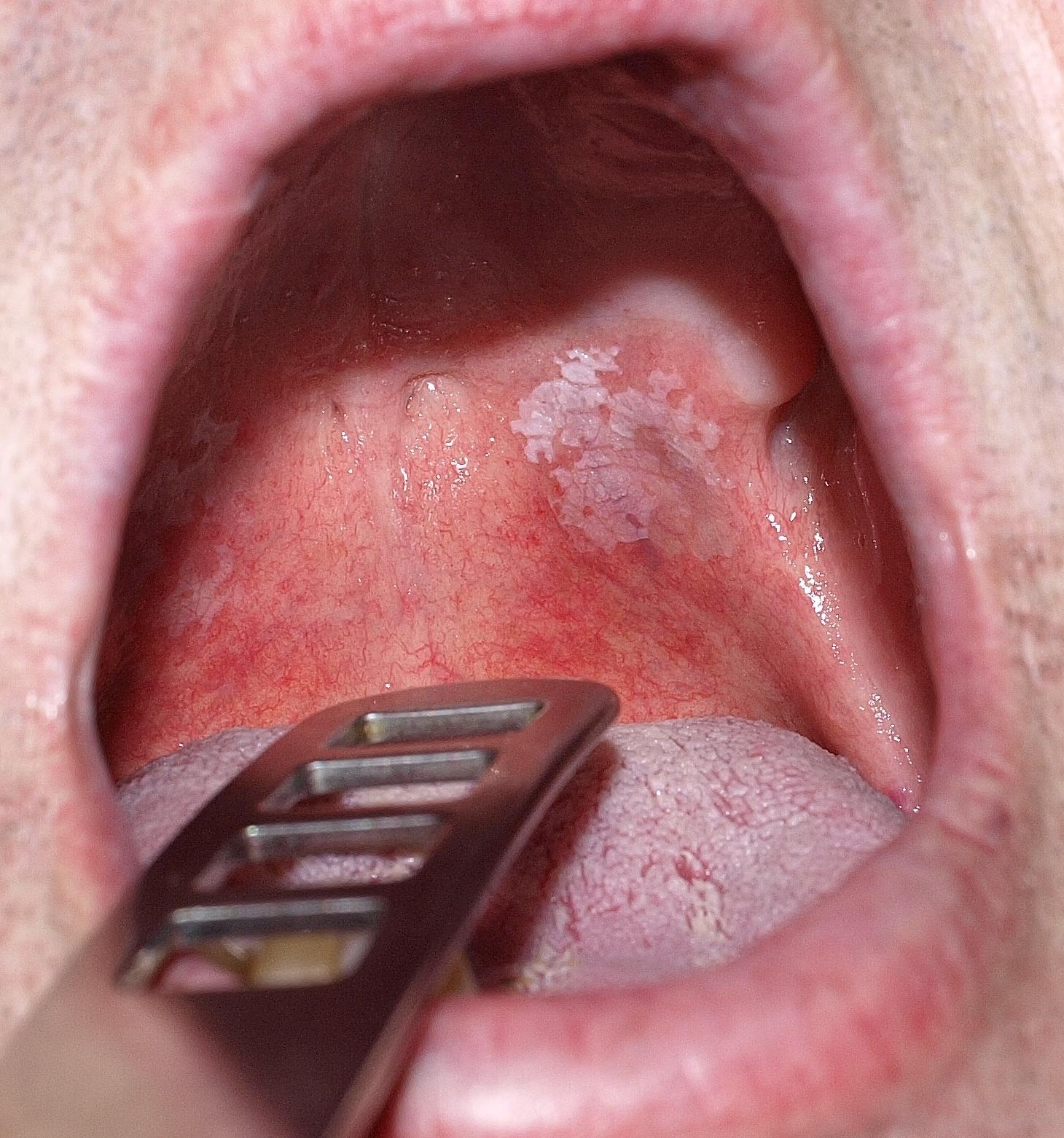 A papilloma tünetei a torokban. A humán papillomavírus és a szájüregi daganatok | carbocomp.hu
