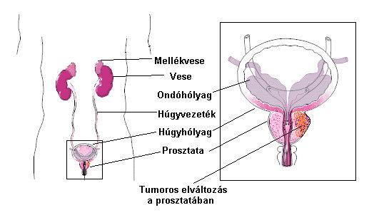 prosztatarák hogyan lehet megelőzni helmintterápia cöliákia