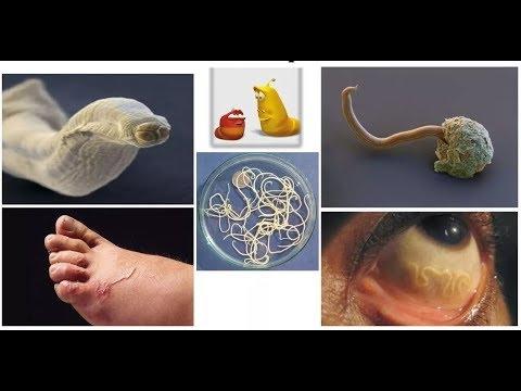 paraziták előállítására szolgáló hamu hpv ujjszerű vetületek