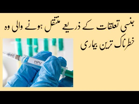 a papilloma urdu nyelven jelent főtt gomba kalória