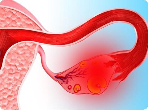 Milyen tünetekkel jelentkeznek a nőgyógyászati rákok? - HáziPatika