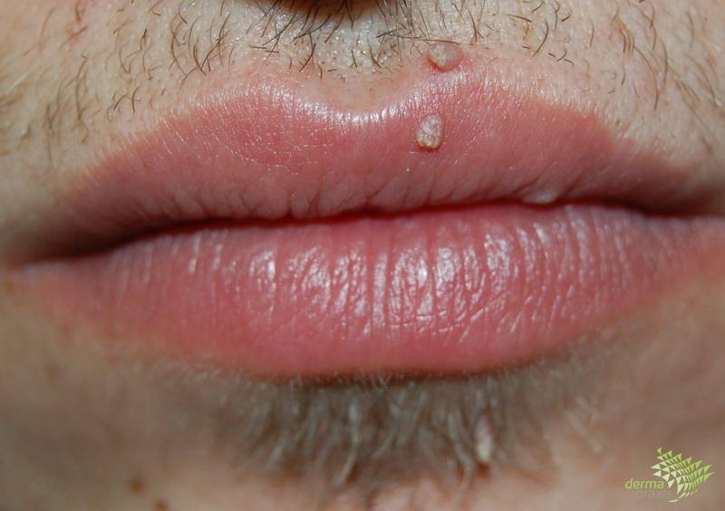 szemölcsök az arcon nőknél hpv vírus kiütés