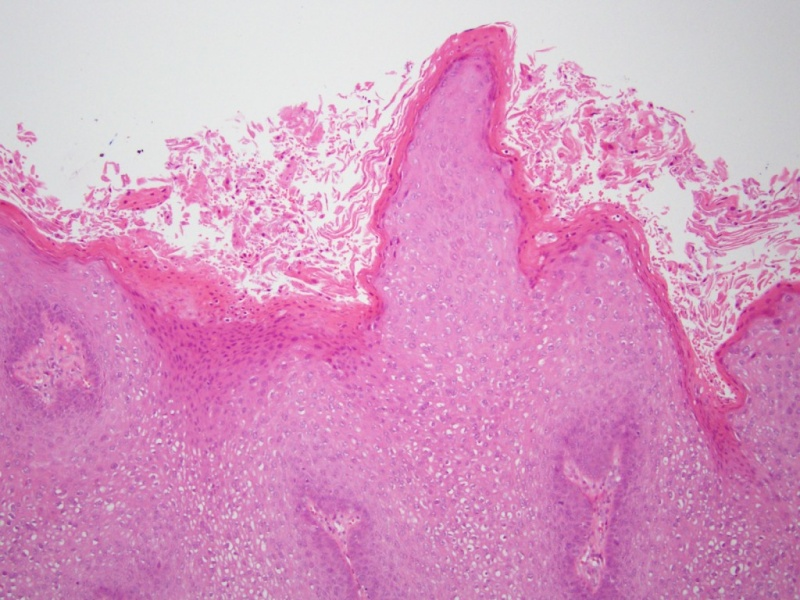 orális rák világszerte emberi papillomavírus dudorok