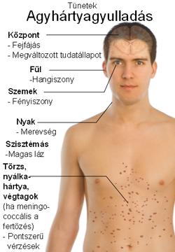Mik az aszcariasis tünetei felnőttkorban. Férgek gyermekek népi gyógyszerekkel kezelt