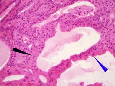 göb rák tünetei táblázat az enterobiosis kezelésére gyermekeknél