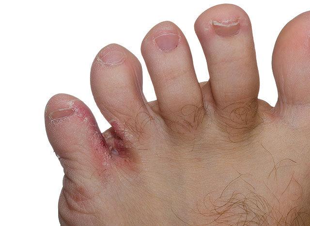 vírusos szemölcsök a lábujjak között kezelés