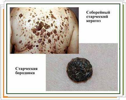 kezelnie kell az emberi papillomavírust hogyan lehet eltávolítani a gyöngyöt
