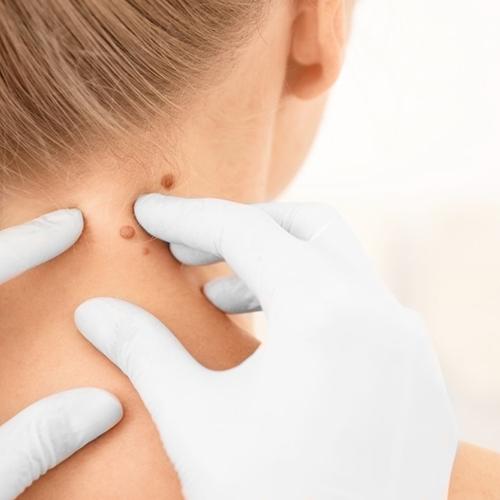 hogyan kell kezelni a nyaki szemölcsöket
