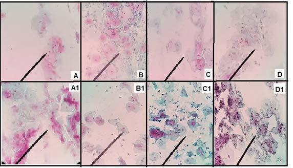 hpv verbreitung módon az enterobiosis epidemiológiája