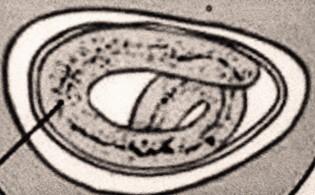 enterobiasis ápolásban
