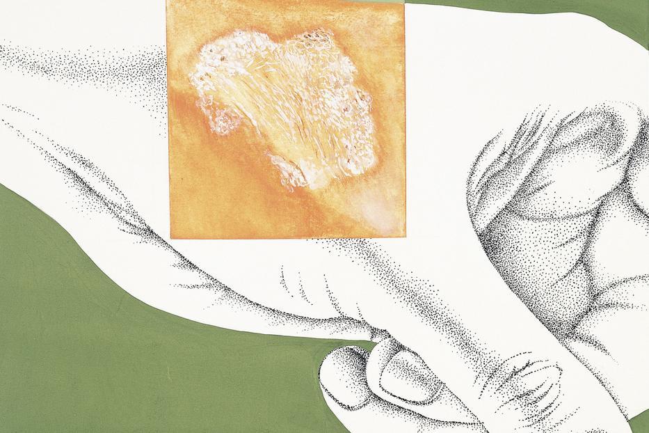 cink dysbiosis férgek elleni gyógyszerek diagramja