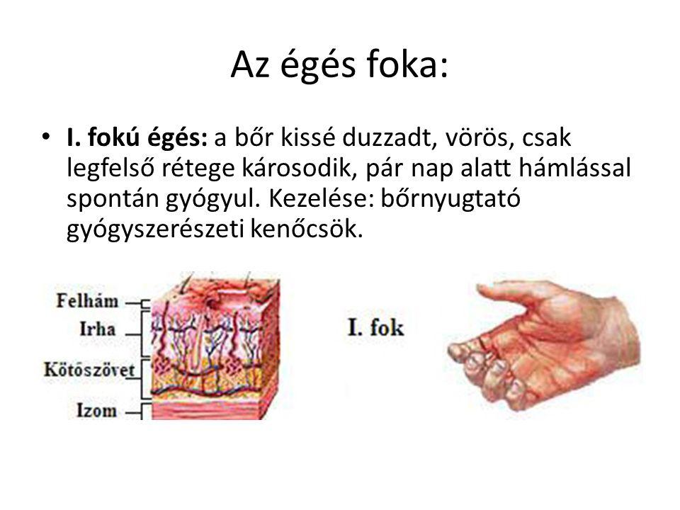 az ujjak közötti égési sérülések kezelése vastagbél méregtelenítő munka