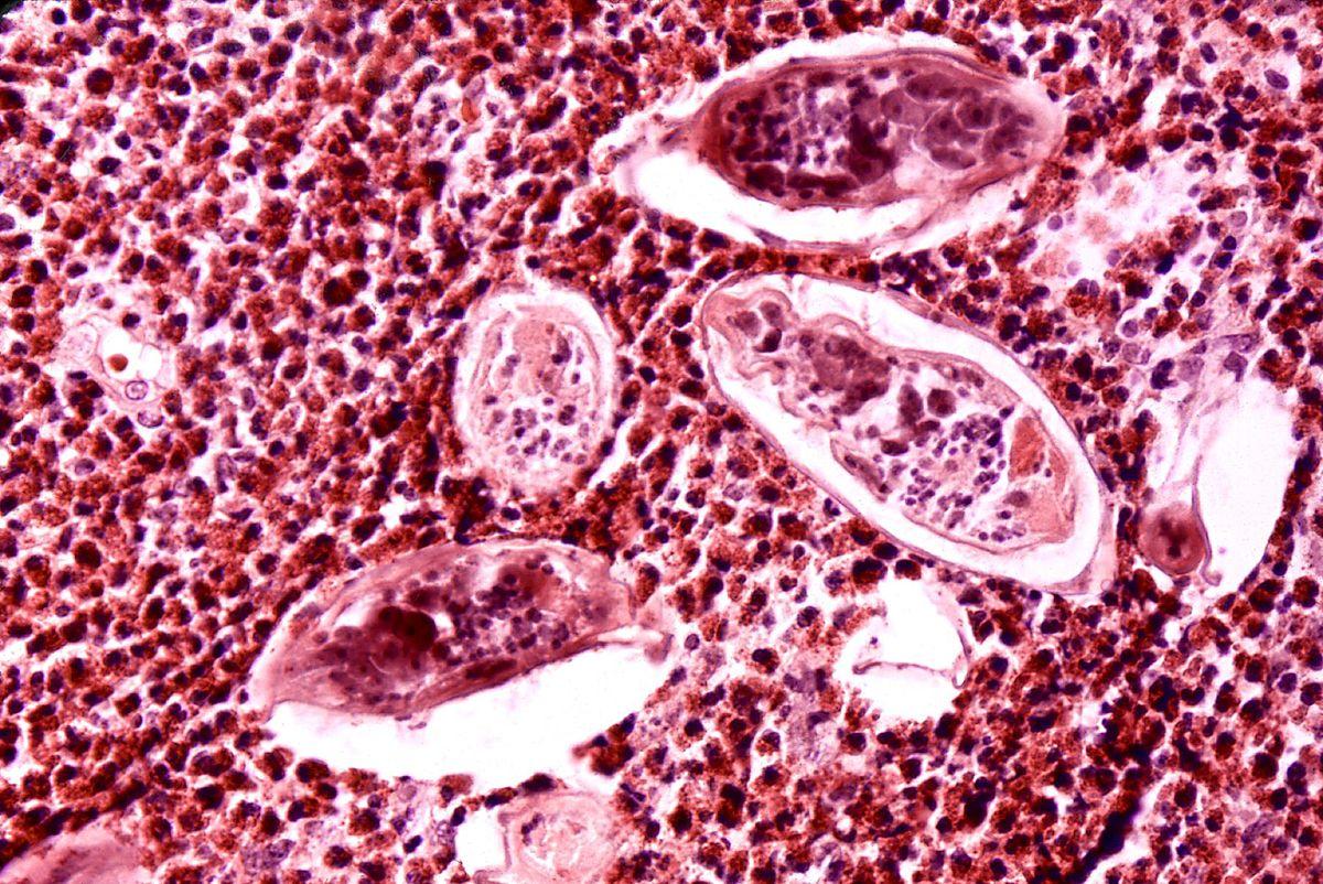schistosomiasis hematuria