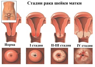 mi okozza a papilloma vírust)