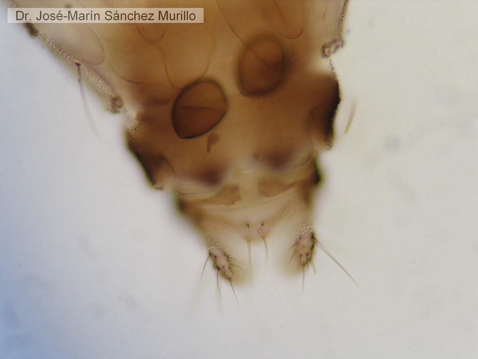 a mellbimbó genitális szemölcsei