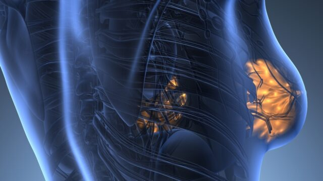 hasnyálmirigyrák gáz