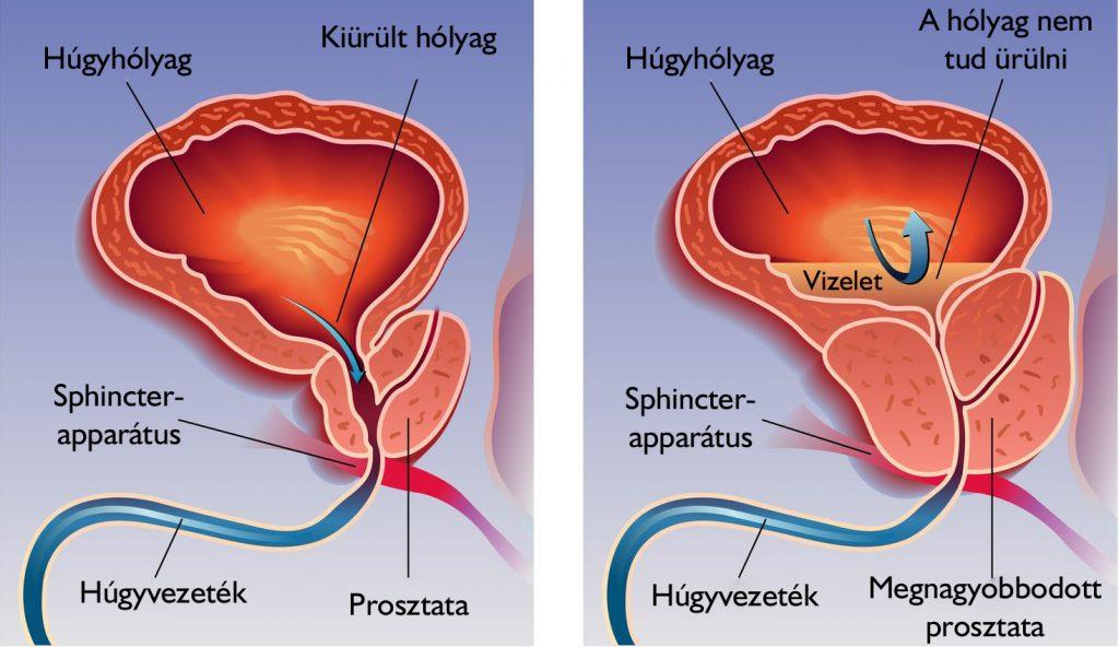 melyek a test parazitáinak gyógymódjai