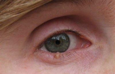 papilloma a felső szemhéjon mit kell tenni moxibustion szemölcsök nőknél