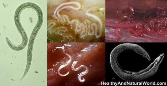parazita gát papilloma a bőr alatt