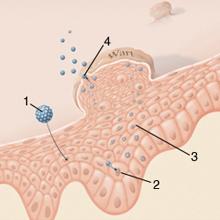 a genitális szemölcsöket okozó hpv típus gastroenteritis giardia icd 10