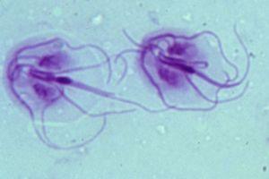 giardia parasiet bij mensen látható emberi paraziták