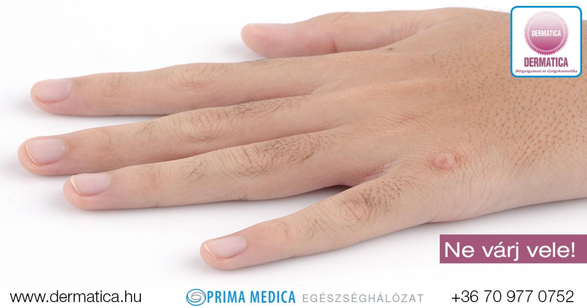 HPV-fertőzés tünetei és kezelése Okozhat-e csalánkiütést a hpv vírus