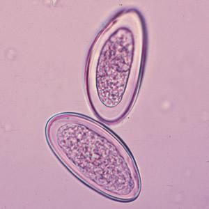 Enterobiosis beleegyezési minta, Szegedi Tudományegyetem   Tanrend