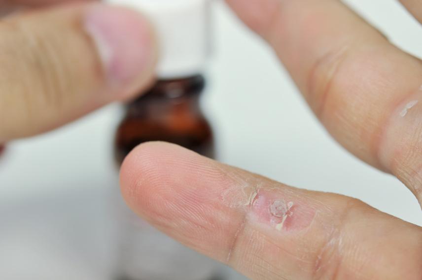 gyógyítani a papilloma vírusból paraziták kezelése emberben