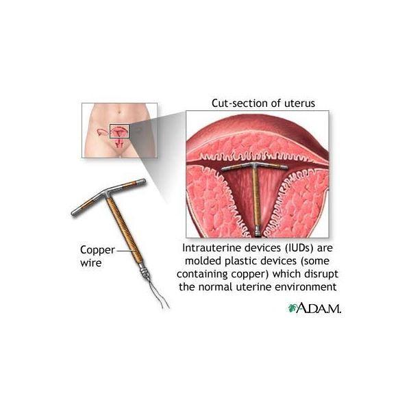 endometrium rák nedir)