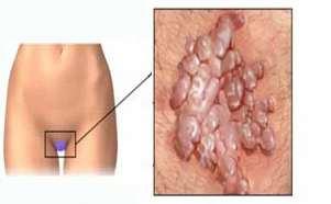 Ezért kell HPV-teszt akkor is, ha negatív a citológiai lelet