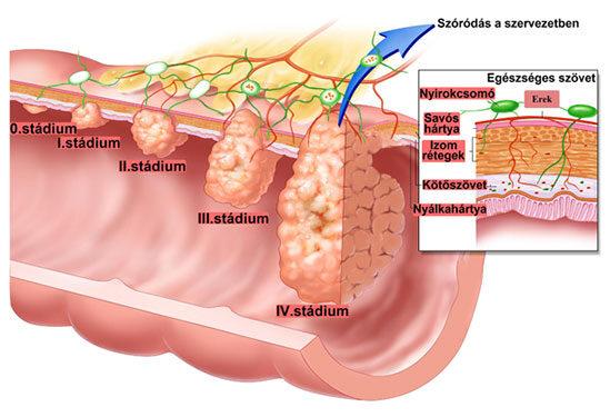 súlycsökkenés székrekedés és rektális vérzés