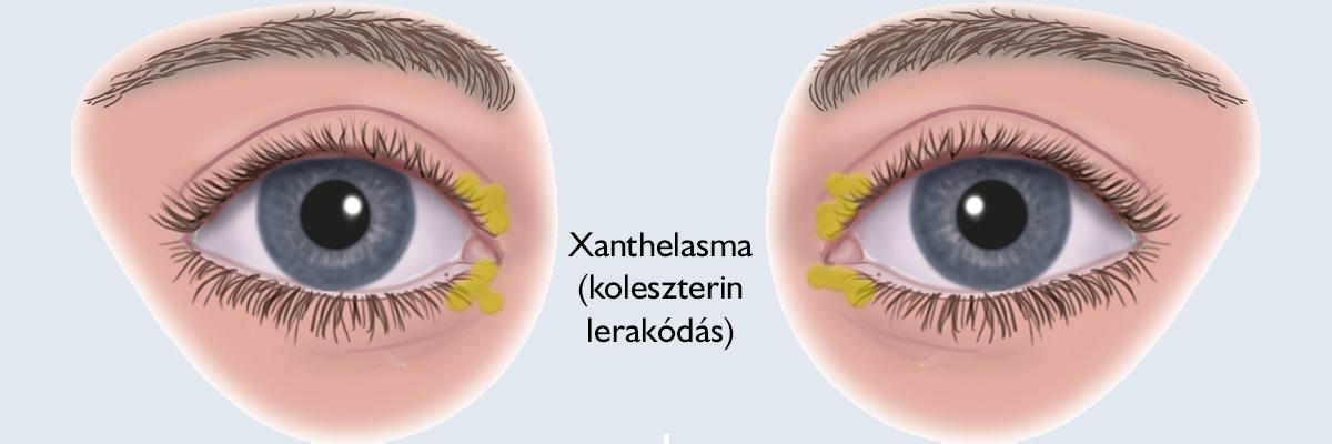 szemhéj papilloma kezelés nemi szemölcsök gyógyszerek vélemények