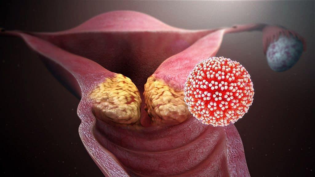 Papilloma vírus emberképeken