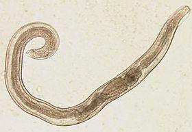 aki szemölcsökkel távolította el a szemölcsöket hogyan lehet felismerni a gyermek giardiasisát