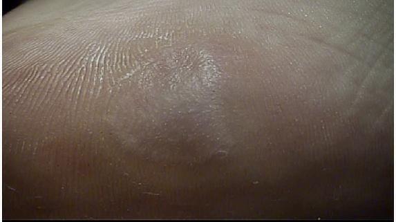 a nyaki condyloma tünetei