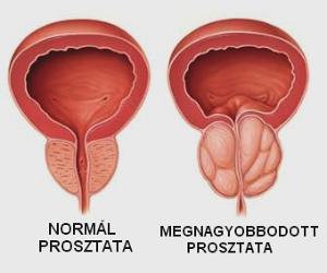 A prosztatarák kezdeti tünetei papillomavírus hpv cin 1