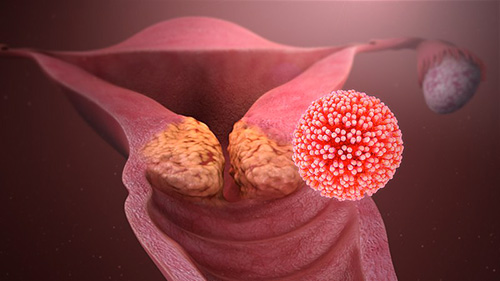 papillomavírus hpv 45