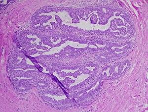 az emberi papillomavírus viszketést okozhat-e szemölcsök a nyelv alatt, miközben mutat