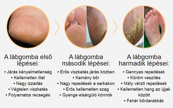a legjobb dermatológiai vélemények