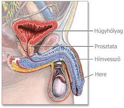 komplex paraziták a vestibularis papillomatosis kezelése