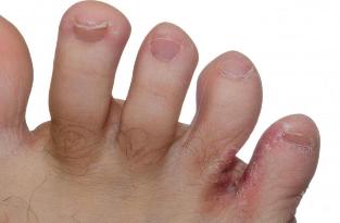 a lábujjak közötti repedések kezelést okoznak