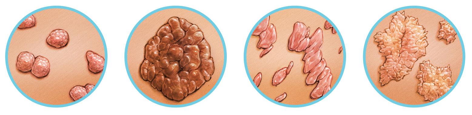 a genitális szemölcsök és a papillómák közötti különbség a helminták otthoni kezelése