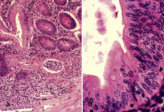 giardia muris férgekkel fertőzött férgek