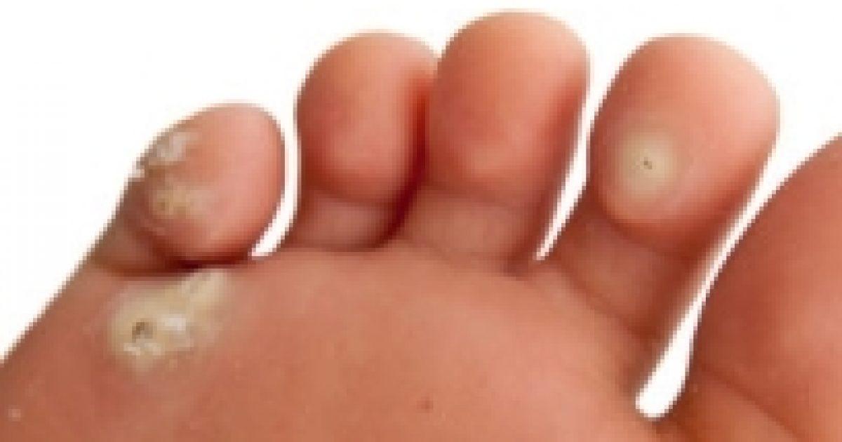 hogyan kell beszélni szemölcsök ültetésével a lábakon szemölcsök a húgycső nyálkahártyáján